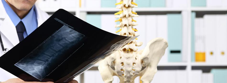 Doctor researching Sciatic pain