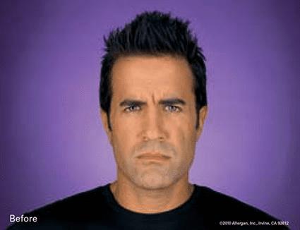 Male eyebrow furrow