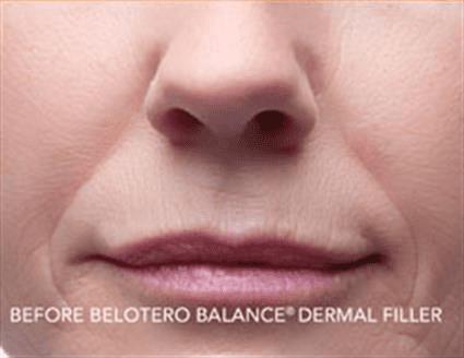 Derma Filler Before