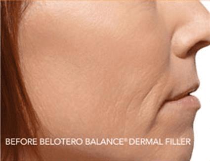 Derma Filler Nose Before