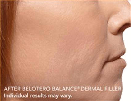 Derma filler nose after