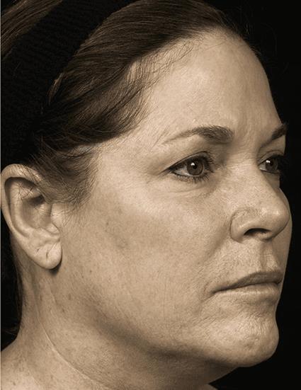 Women after fraxel Case 18