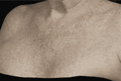 Chest before fraxel Case 17