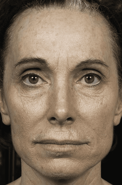 Womens face after fraxel Case 19