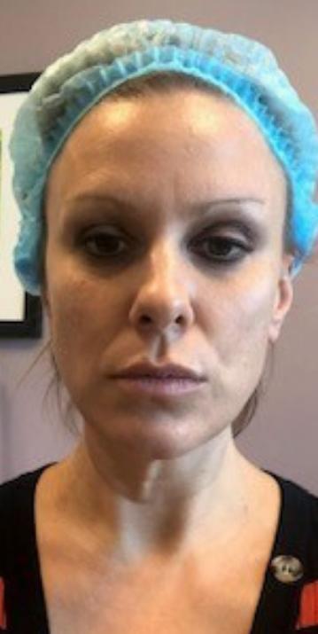 Amanda, before Laser Facial