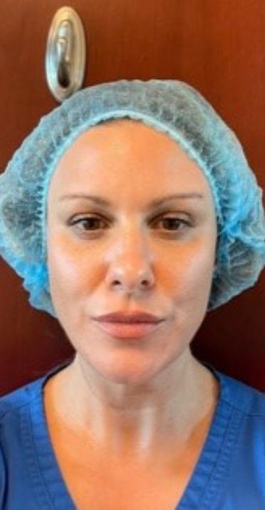 Amanda, after Laser Facial