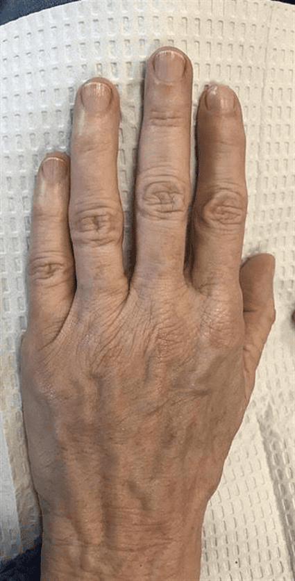 Hands before Case 37