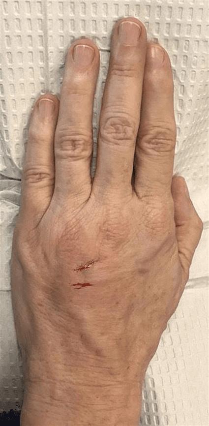 Hands after Case 37