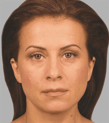 woman before Case 28