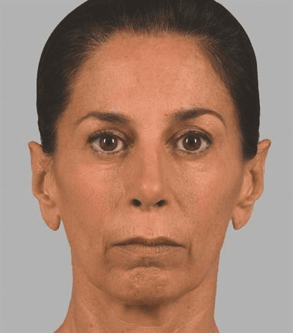 Woman before Case 29