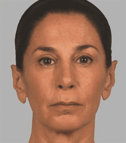 Woman after Case 29