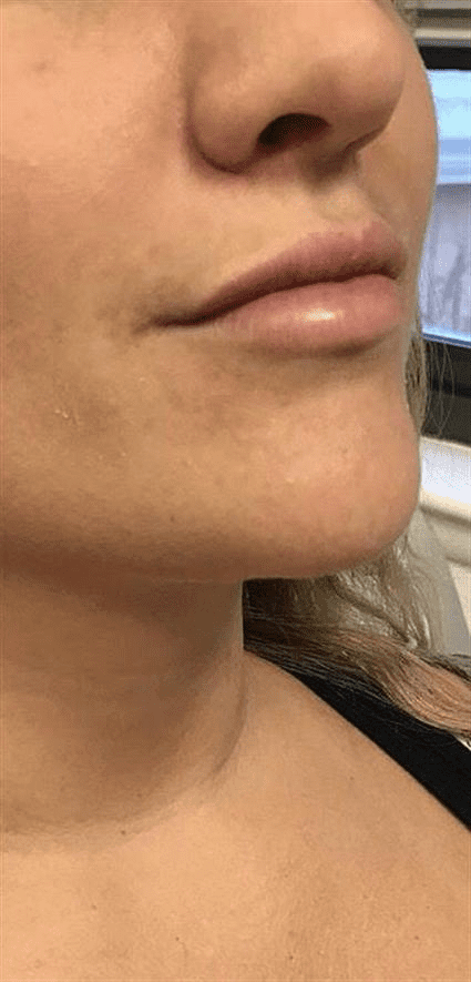 lips after Case 40