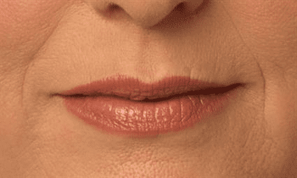 lips before Case 25