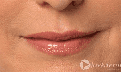 lips after Case 25