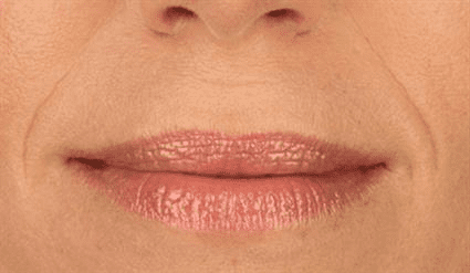 lips before Case 27
