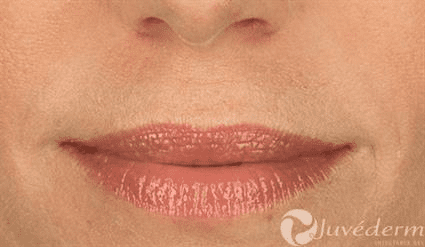 lips after Case 27