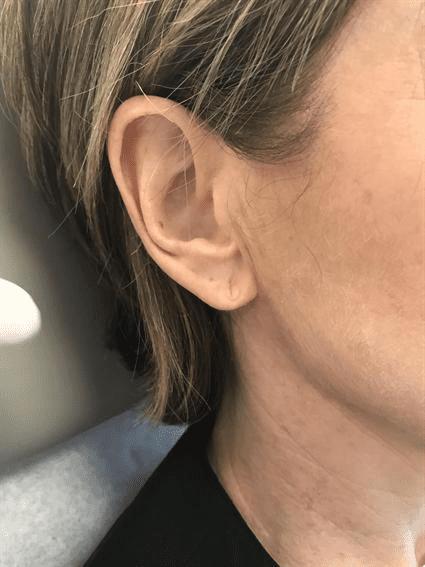 ears before Case 39