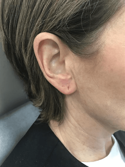 ears after Case 39