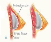 breast augmentation illustration