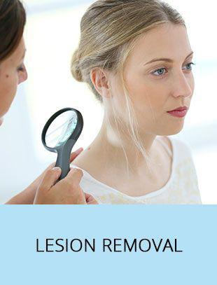 Lesion Removal