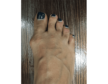 Bunion Surgery Before After 1