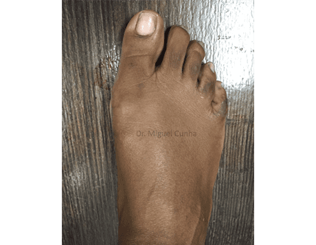 Bunion Surgery After 3