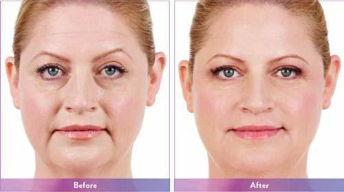 Botox And Fillers Specialist - Avante Laser and MediSpa
