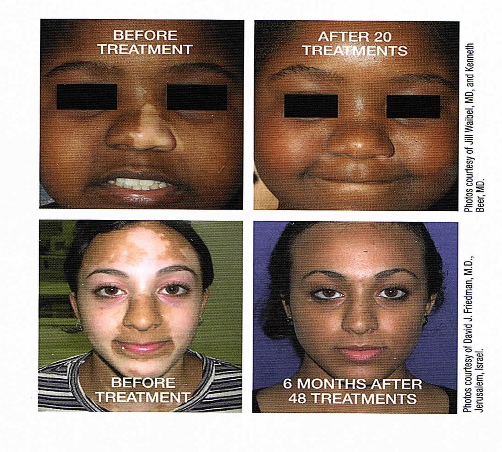 Vitiligo Specialist Coral Gables Fl Miami Fl South Florida Dermatology Dermatologist
