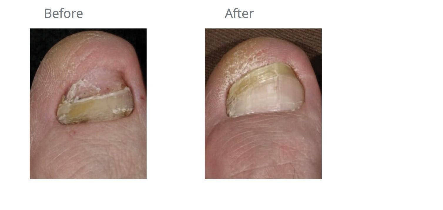 Nail Fungus - Bismarck, ND: Pure Skin Aesthetic & Laser Center