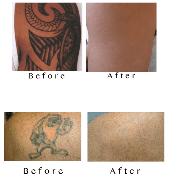 Laser Tattoo Removal Specialist - Munster, IN: N. Hasan, MD: Medical ...