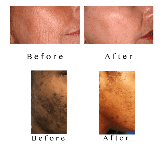 Skin Lightening Therapy Specialist - Munster, IN: N  Hasan, MD