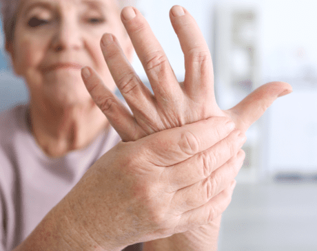 arthritis photo