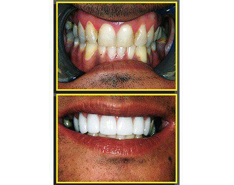 Porcelain Dental Veneers Before & After  Patient presented with deeply stained teeth with weakening enamel. Patient was an ideal candidate for tooth replacement using porcelain dental crowns. Dr. Sherzoy designed a smile proportionate to the client's mouth, great coloring and masterful sculpting. Patient's treatment was complete in 3 visits.