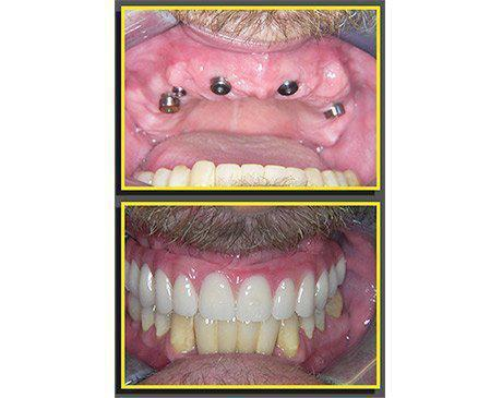 Dental Implants Before & After  Patient presented with no upper teeth. Patient was tired of the daily maintenance associated with his dentures. He was an excellent candidate for fix dentures over implants. Due to bone loss patient did require a bone graft to guarantee the performance of the rear implants. Patient's treatment was complete in 4 visits.