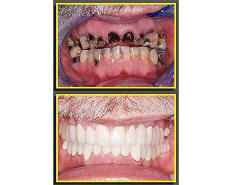 Dental Implants Before & After  Patient presented with massive tooth decay. Unfortunately the decay made post and crown over root canal impossible. Existing teeth were removed and implants were placed after ample healing time. Treatment was finished using porcelain crowns over abutments. Patient's treatment was complete in 8 visits.