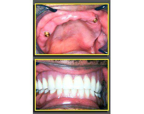 Fix Dentures Over Dental Implants Before & After  Patient presented with traditional dental appliance. Patient found dentures constantly slipping out of position. Patient was an exceptional candidate to receive fix permanent dentures over dental implants. Daily maintenance of dentures is no longer an issue for this patient. Patients treatment was complete in 4 visits.