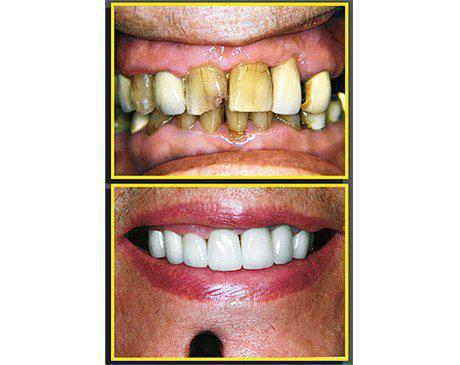 Porcelain Crowns Before & After  Patient presented with massive tooth decay and a type 1 malocclusion. Patient's entire upper teeth were replaced using porcelain veneers anchored to existing tooth structure. Here again Dr. Sherzoy artistically designed a new smile for this patient. Treatment was complete in 5 visits.
