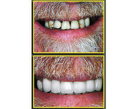 Porcelain Dental Crowns Before & After  Patient presented with severe tooth decay, staining and misshaped incisors. The only sensible course of treatment due to the condition of patient's teeth was porcelain crown. Dr. Sherzoy and our resident lab technician designed an award winning smile for this patient. Patient's treatment was completed in 4 visits