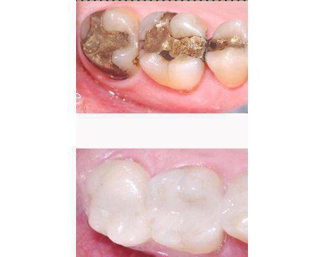 Amalgam Fillings / Composite Replacement Before & After  Patient presented with 10 year old amalgam fillings that were leaking. To prevent further decay and tooth loss patient's fillings were replace with a composite resin. Treatment was completed in 1 visit.
