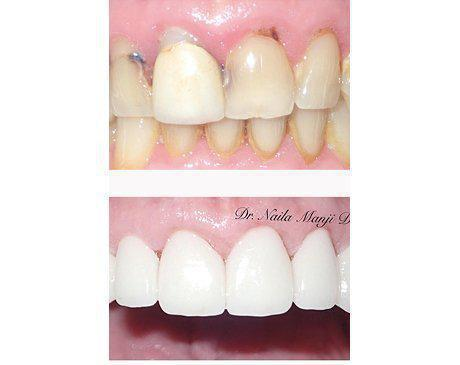 Porcelain Veneers Before & After   Patient presented with upper malformation and deep discoloration. Dr. Manji prepared existing tooth structure then designed upper porcelain veneers. Patient's treatment was complete in 3 visits.