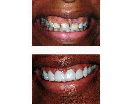 Porcelain Veneers Before & After   Patient presented with tooth decay, malformation and large gap between front teeth. Dr. Sherzoy prepared existing tooth structure then designed 10 upper porcelain veneers. Patient's treatment was complete in 4 visits.