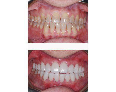 Porcelain Veneers Before & After   Patient presented with tooth decay, malformation and large gap between front teeth. Dr. Sherzoy prepared existing tooth structure then designed 12 upper and 12 lower porcelain veneers. Patient's treatment was complete in 5 visits.