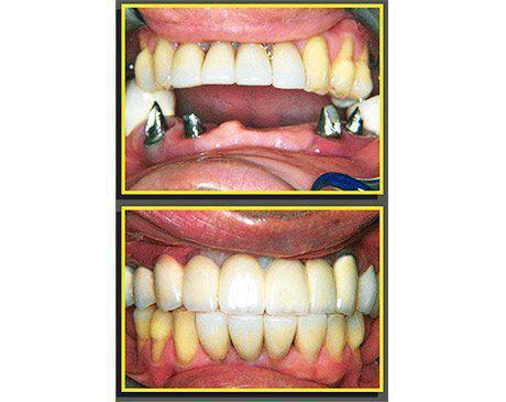 Dental Implants Before & After  Patient presented with several missing front teeth. Patient was an excellent candidate for multiple implants. Treatment was completed using porcelain crowns designed by Dr. Sherzoy and manufactured by technicians in our on-site dental laboratory. Patient's treatment was complete in 5 visits.