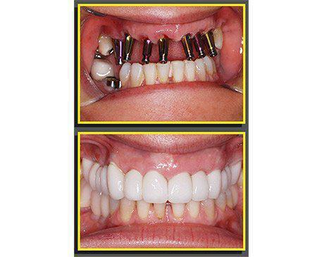 Dental Implants Before & After  Patient presented with missing front and lower teeth. Patient received 8 dental implants after significant healing time porcelain crowns were placed over dental abutments. Dr. Sherzoy designed patient's new smile and our lab team created 8 crowns in our dental laboratory to match existing tooth color and proportion flawlessly. Patient's treatment was completed in 9 visits.
