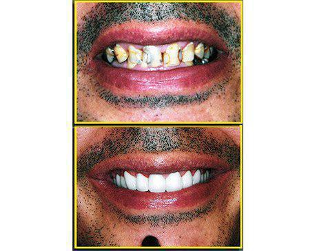 Porcelain Crowns Before & After  Patient presented with extensive tooth decay. Dr. Sherzoy prepared existing tooth structure then designed upper and lower porcelain crowns. Patient's treatment was complete in 4 visits.