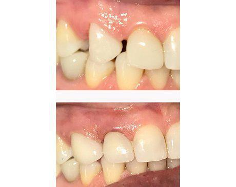 Tooth Spacing Remedied With Dental Veneers Before & After  Patient presented with large gaps between canine and molars. Gaps were closed using porcelain dental veneers which improving patient's appearance and ability to chew without discomfort. Treatment completed in 2 visits.