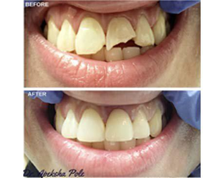 Broken Tooth Remedied With Dental Veneer Before & After  Patient presented with a chipped and broken tooth. Patient's teeth were restored and adjacent teeth enhanced with 3 porcelain dental veneers. Treatment was completed in 2 visits.