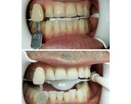 Glo Whitening Smile Enhancement Before & After  Patient presented with moderate staining due to years of smoking & drinking coffee. Patient was treated with Glo whitening and saw a remarkable result from A3 to A1 tooth coloring. Treatment was completed in 1 visit.