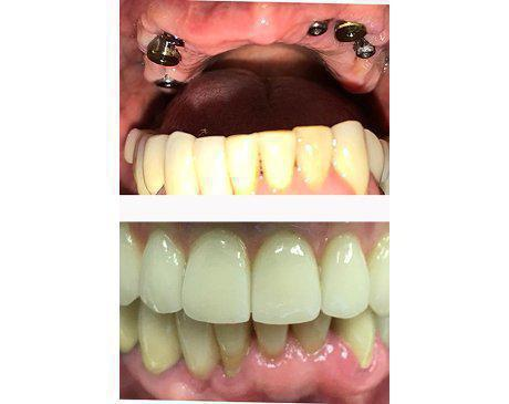 Full Arch Restoration Before & After  Patient presented with no upper arch due to tooth loss. Upper arch was restored with 6 dental implants, permanent multi-unit bridge and dental crowns. Patient's appearance and ability to chew and digest food was remarkably increased. Treatment was completed in 5 visits.
