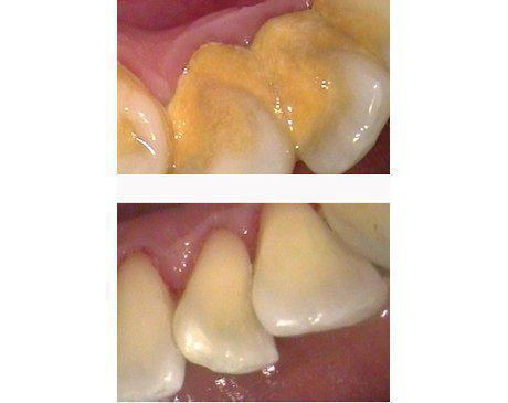 Gum Disease Treatment Before & After   Patient presented with severe periodontal disease causing extreme discomfort and imminent tooth loss without treatment. Patient's teeth were saved and gums were restored to nominal pocket depth with deep root scaling, planning and cleaning. Treatment was completed in 3 visits.